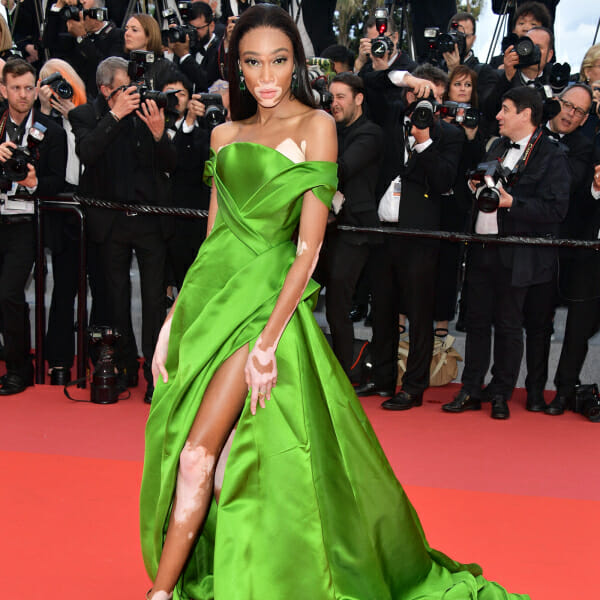 Winnie Harlow poses in her green dress at Cannes.