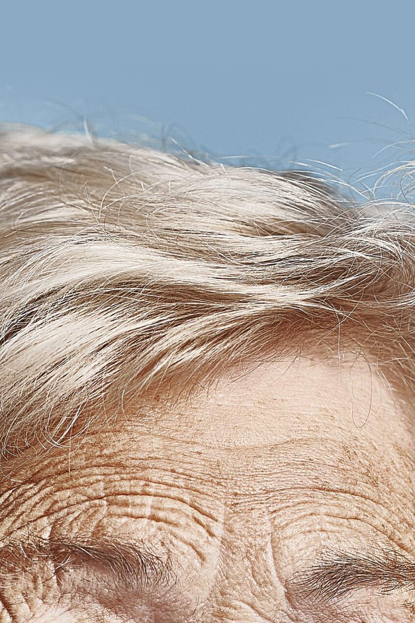 forehead wrinkles man repeller